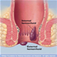 Hemorrhoids - pictures