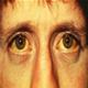 Icterul (sindromul icteric) - poze