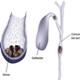 Litiaza biliara (calculi biliari) - poze