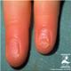 Sindromul Plummer-Vinson - poze