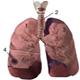Abcesul pulmonar - poze