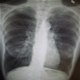 Maladie pulmonaire obstructive chronique (MPOC ) - photos