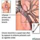Bronsita cronica - poza