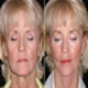 Lifting Facial - poze