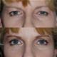 Blefaroplastia Pleoapelor si Ridurilor - poze
