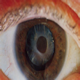 Cataract - bilder