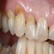 Abrazia dentara - poze