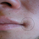 Cheilitis - photos