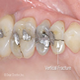 Cracked Tooth-Syndrom - Bilder