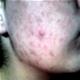 Acne (brufoli) - foto