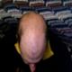 Alopecia Androgenica - poze 1