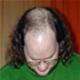 Alopecia Androgenica - poza