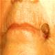 Keratoza actinica - poze