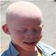 Albinism - poza 2