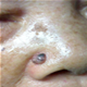 Nasal Cancer - pictures