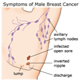 Male breast cancer - pictures