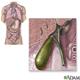 Gallblader cancer - pictures
