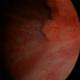 Bladder Cancer - pictures