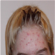 Acne Pimples - pictures