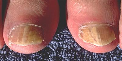 Formatk-Unica si cea mai eficienta metoda de eliminare a ciupercii unghiei (onicomicozei)