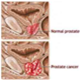 Prostate Cancer - pictures